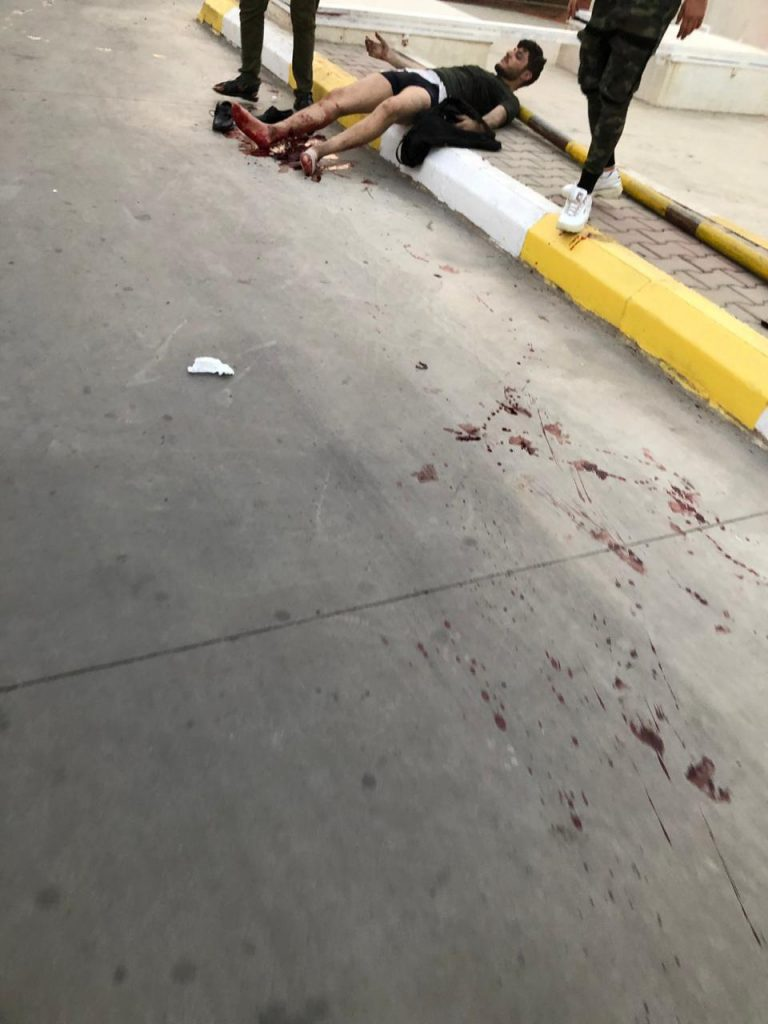 صور: سقوط ضحايا بتفجير استهدف سيارة نقل وسط كركوك