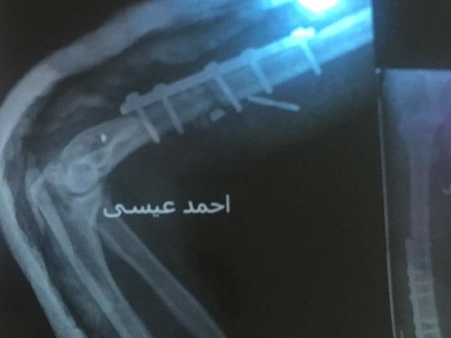 """قصة شاب عشريني وجد """"بريمة حفر"""" داخل يده بعد خروجه من العملية.. هكذا رد الطبيب!"""