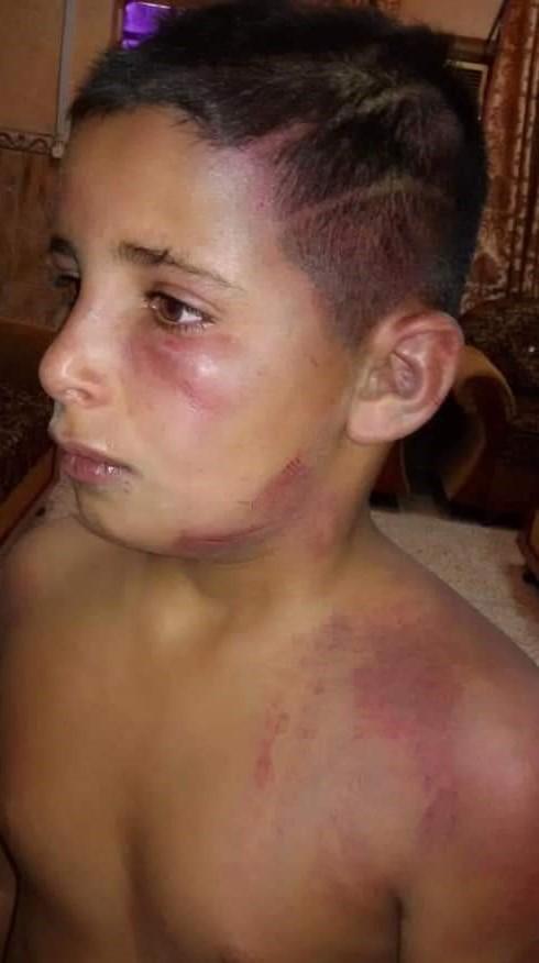 الشرطة المجتمعية ترافق طفلاً تعرض للتعذيب على يد والده لتسجيل دعوى