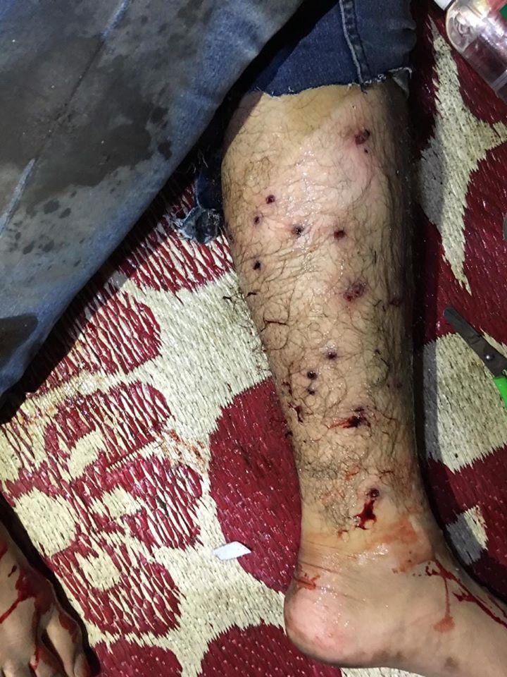 متظاهرون في كربلاء: السلطات تجرب سلاحاً جديداً ضد الشبان في حي البلدية!