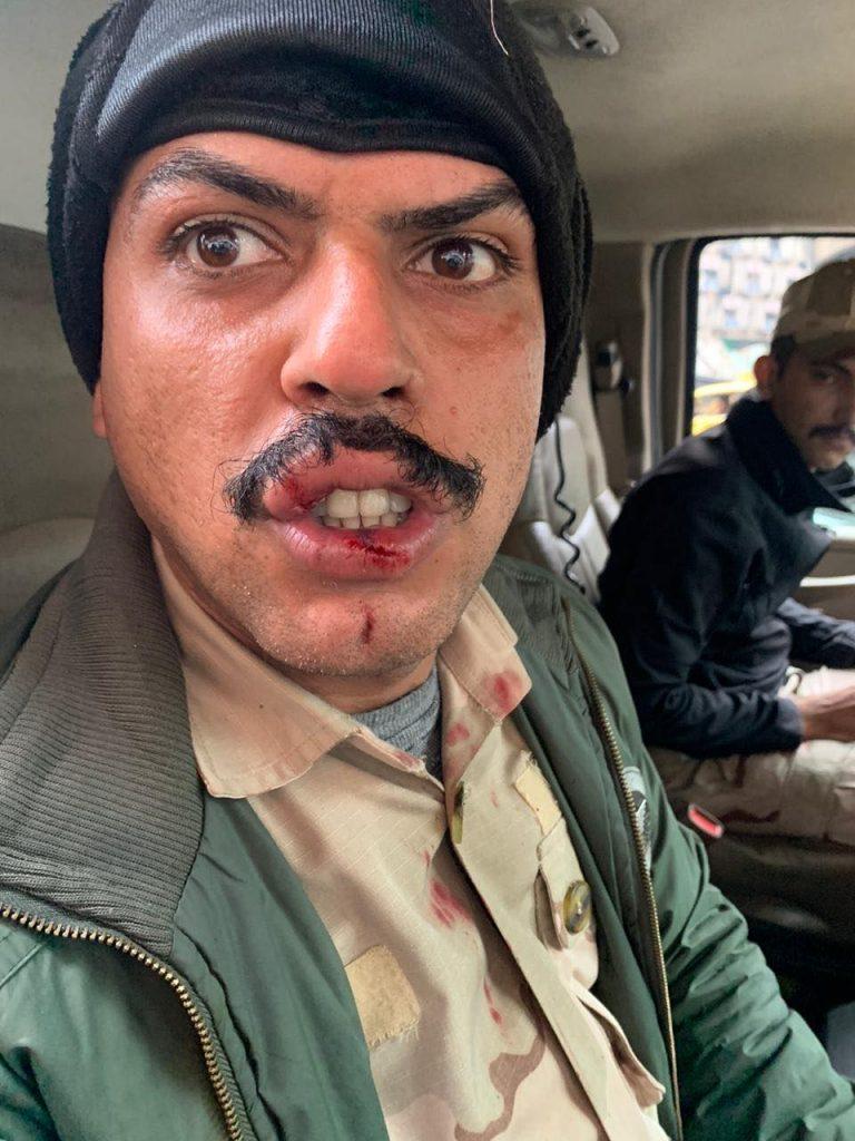 عمليات بغداد تنشر صورة لجندي مصاب في شفته بجرح
