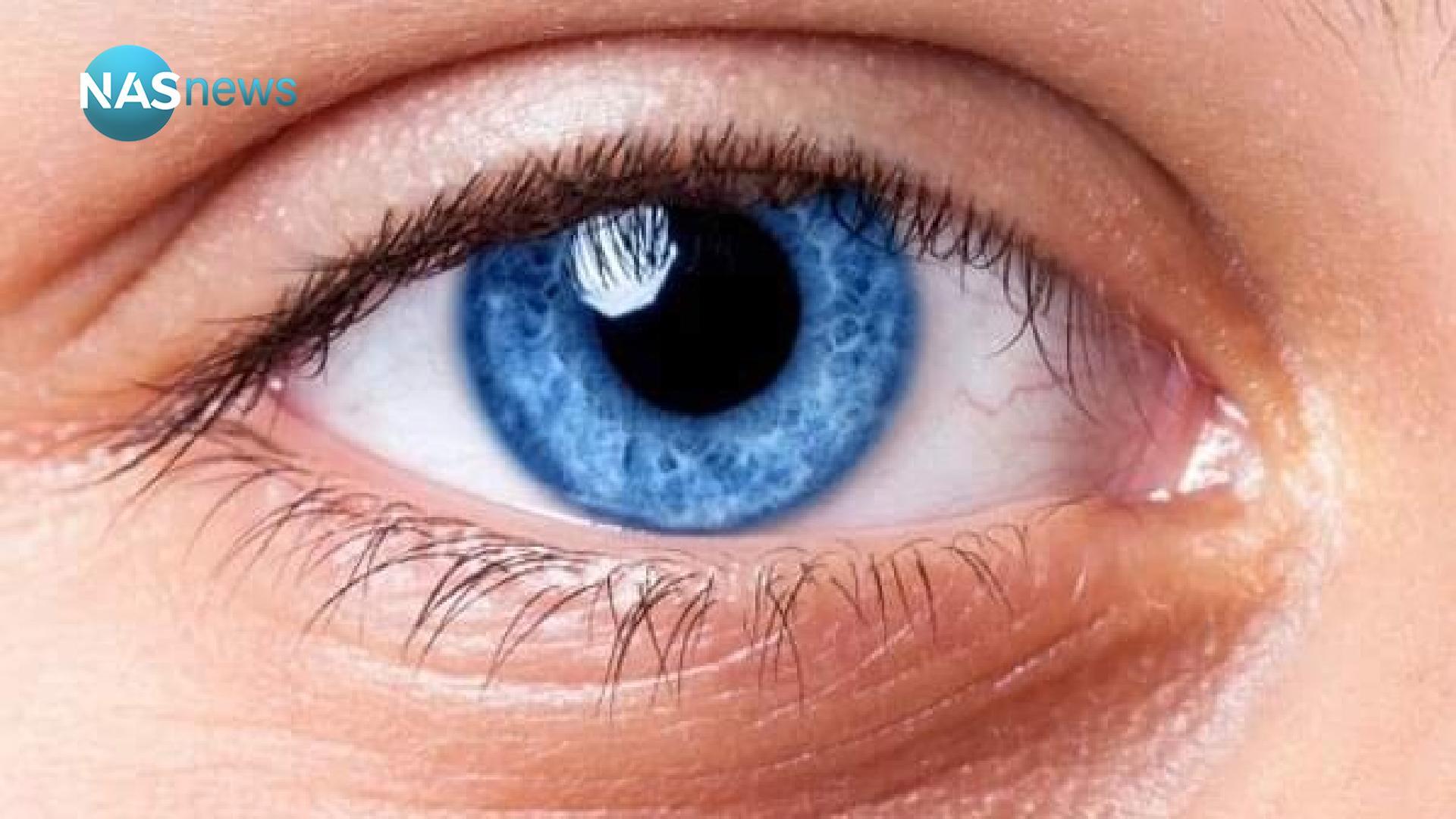 الكشف عن السبب الأكثر شيوعاً لفقدان البصر